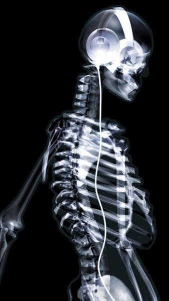 Klicken Sie auf die Grafik für eine größere Ansicht  Name:Skelett.jpg Hits:323 Größe:56,3 KB ID:19374