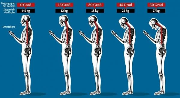 Klicken Sie auf die Grafik für eine größere Ansicht  Name:smartphone-nacken-vorbeugung.jpg Hits:10 Größe:150,4 KB ID:53276